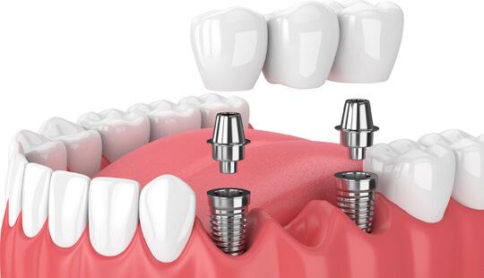 3-D Scanning for Dental Implants